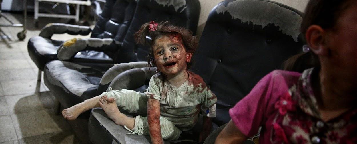 Criança Síria vítima de bombardeio.